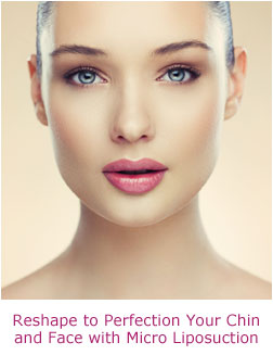 Micro Liposuction Allows You to Reshape to Perfection Your Chin, Neck and Face